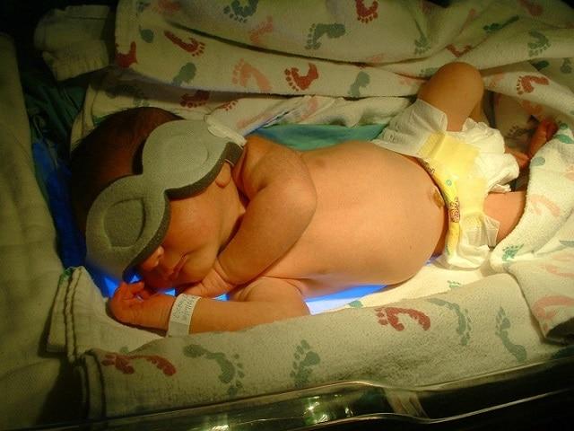 Tắm nắng cho trẻ sơ sinh vàng da