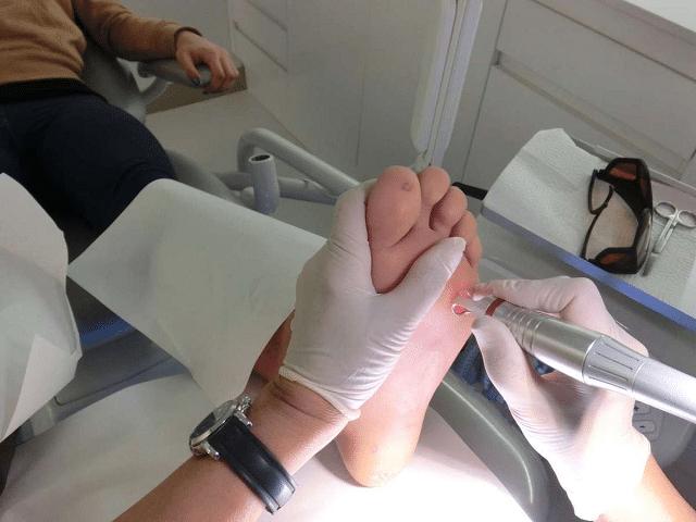 Bà bầu bị mụn cóc có thể điều trị bằng laser