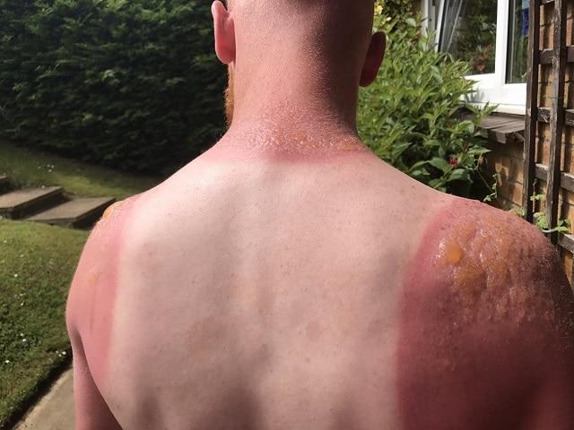Cách trị cháy nắng tại nhà an toàn hiệu quả