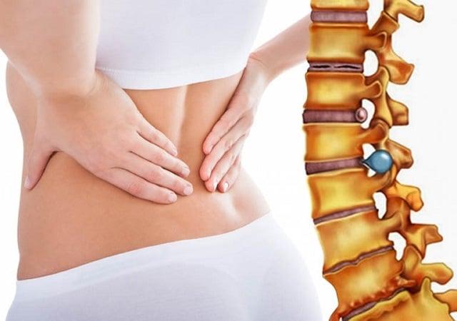 Triệu chứng và cách chữa thoát vị đĩa đệm