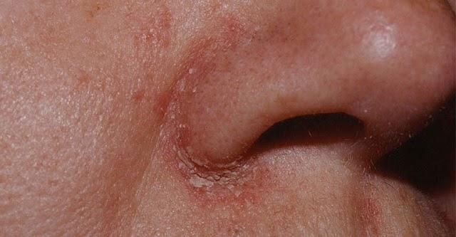 Viêm da tiết bã nhờn: Nguyên nhân, triệu chứng và cách chữa trị