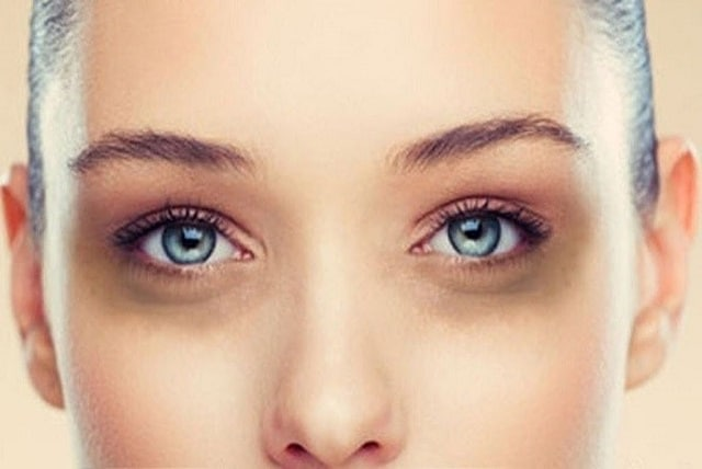 Thâm quầng mắt khiến chị em phụ nữ tự ti mỗi khi ra đườngThâm quầng mắt khiến chị em phụ nữ tự ti mỗi khi ra đường