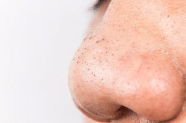 Mụn đầu đen xảy ra hầu hết ở tất cả các loại da