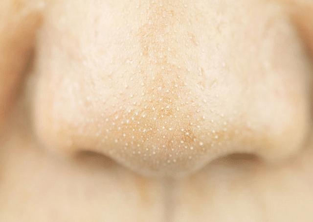 Mụn cám thường xuất hiện trên vùng da mặt gây mất thẩm mỹ