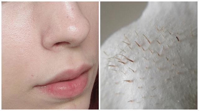 Mụn cám xuất hiện nhiều ở vùng mũi