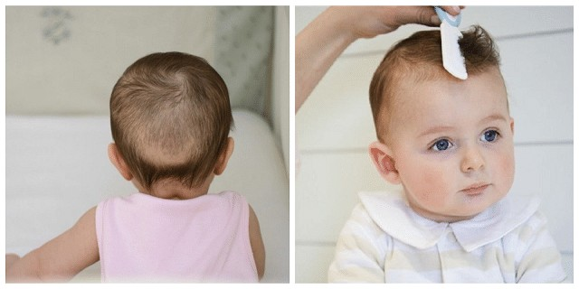 Trẻ sơ sinh rụng tóc vành khăn