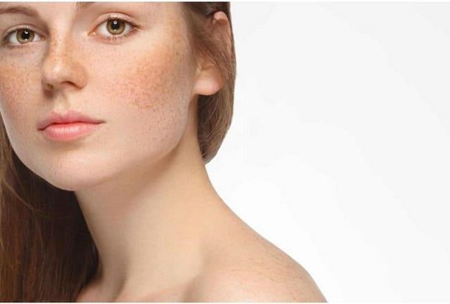 Kem trị nám da collagen