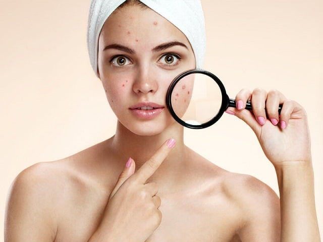 Skincare cho da dầu mụn
