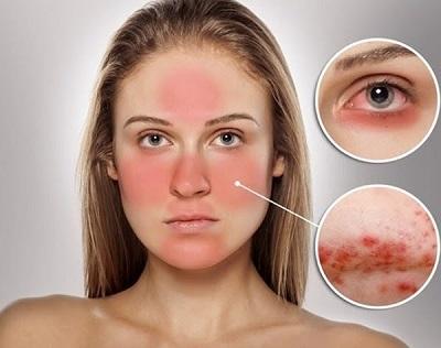 Da nhạy cảm có nên sử dụng kem dưỡng ẩm